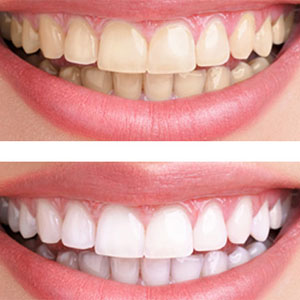 This is the image for the news article titled Teeth Whitening: What is best for you?