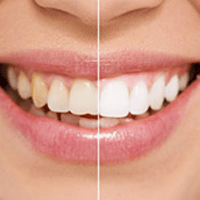split shot of dental patient of before and after a cosmetic dentistry procedure