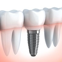 Titanium dental implant close up graphic after placement