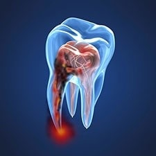 root-canal-therapy-image-of-infected-tooth_225x225